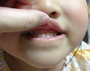 歯の矯正を始める日