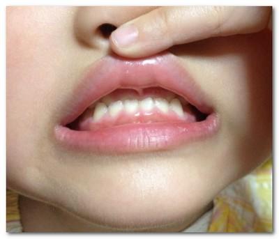 歯の矯正 途中経過