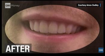 自力で歯科矯正