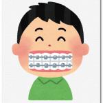 子供の歯科矯正の必要性は?まずは相談がおすすめ!
