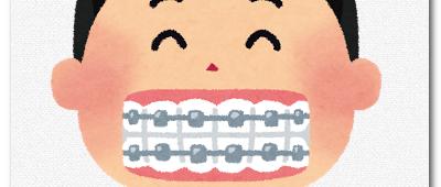 子供の歯科矯正